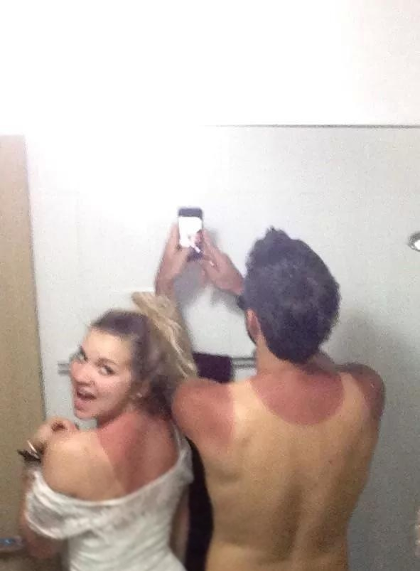 Sunburn Remedy Instant Pain Relief And Overnight Healing